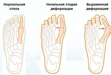 Вальгусные шины - Кыргызстан: Корректор ночной от косточки на ногеортопедическая шина hallufixцена