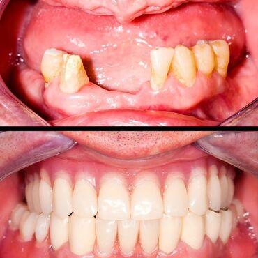 легковой прицеп грузоподъемность 1000 кг в Кыргызстан: Стоматолог | Имплантация зубов