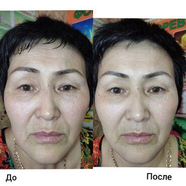 Работа - Кызыл-Адыр: До и после. Потрясающий результат. Это даже Первая процедура
