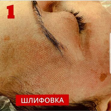 лазерный термометр бишкек в Кыргызстан: Врач-косметолог делает:Плазмолифтинг лица, волос- ботокс- лазерное