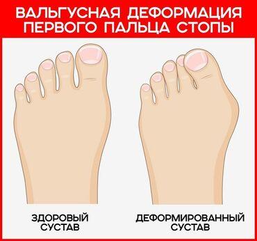 Вальгусные шины - Кыргызстан: Косточка на ноге?Корректоры от вальгусной деформации большого пальца