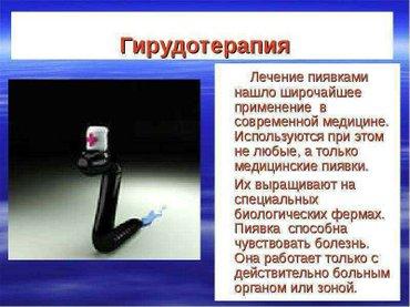 Гирудотерапия лечение без лекарств в Бишкек