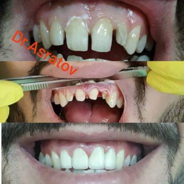 Брекеты Бишкек,Стоматолог, стоматолог в Бишкек