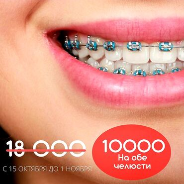 термопрокладки бишкек in Кыргызстан | ГРУЗОВЫЕ ПЕРЕВОЗКИ: Стоматолог | Брекет системы, пластинки