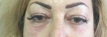 Устранение синяков под глазами,мешков.коррекция носослезной борозды в Бишкек