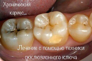 Услуги столяра - Кыргызстан: Стоматолог | Фотопломбы, Другие услуги стоматолога | Консультация