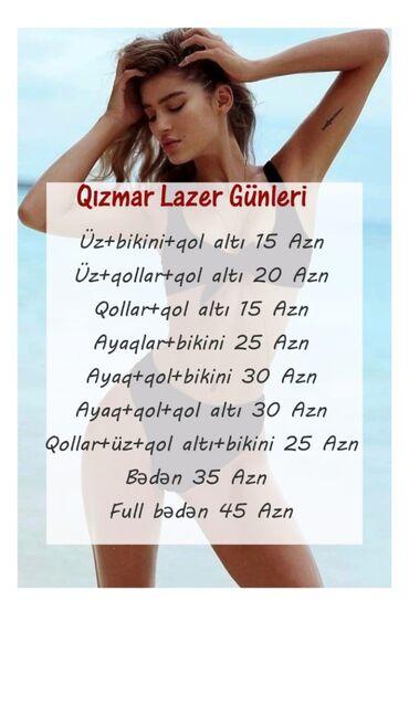 lifan az - Azərbaycan: Lazer