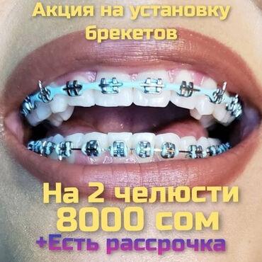 Стоматолог | Протезирование, Чистка зубов, Удаление | Консультация