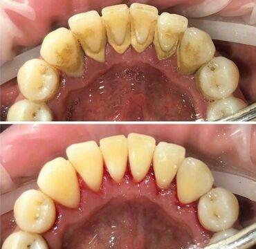 биндеры 500 листов для дома в Кыргызстан: Стоматолог   Чистка зубов