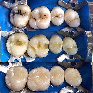 Реставрация боковых (жевательных) зубов композитным материалом