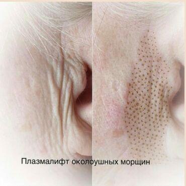сертификат на гос номер бишкек в Кыргызстан: Косметолог   Лифтинг, Отбеливание пигментных пятен, Разглаживание и коррекция морщин   Сертифицированный косметолог