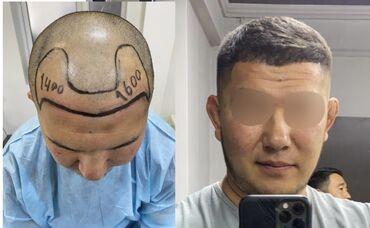 Мода, красота и здоровье - Кыргызстан: Пересадка волос  Впервые в Кыргызстане пересадка волос !!!  по уникал