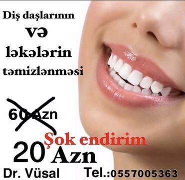 вакансии ассистента стоматолога в Азербайджан: 31/12/2020 kimi. Tələsin