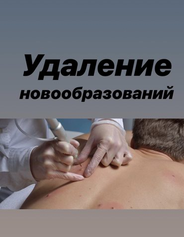 Лазерное Удаление новообразований ! в Бишкек