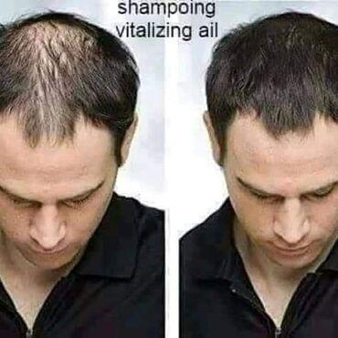 Šampon od belog luka, 500 ml i 225mlIdealan je za rast kose i na