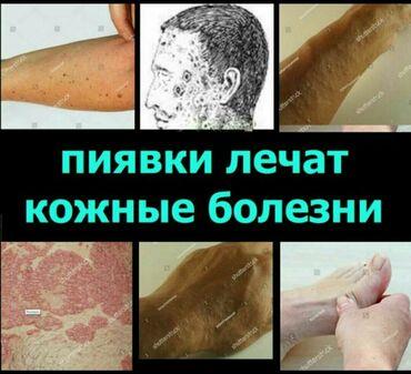 тарифы ошки в Кыргызстан: Кожные болезни пиявки гирудотерапияДоктор Зина: оригинальный метод