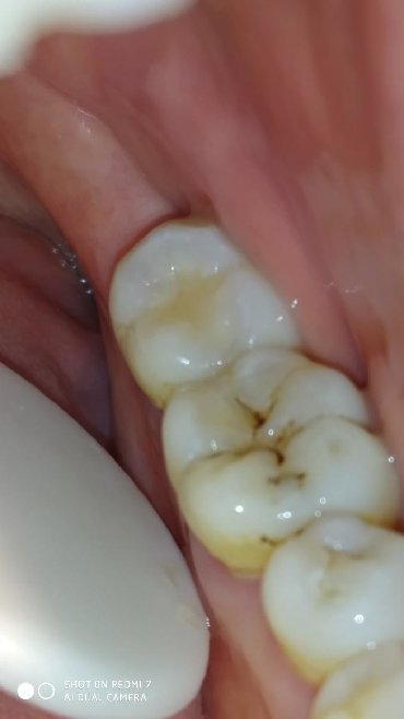 стоматологических услуг в Кыргызстан: Все виды стоматологических услуг:Лечение : кариес пульпит