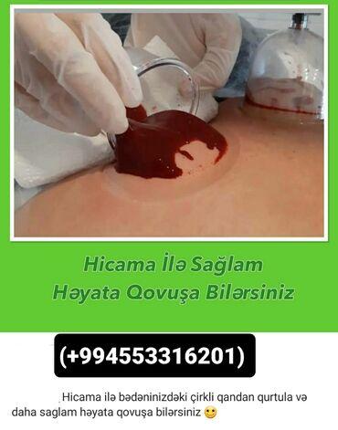 lifan az - Azərbaycan: ⚜hi̇cama terapi̇ya ti̇bbi̇ masaj ve zeli̇ terapi̇ya ev şerai̇ti̇nde
