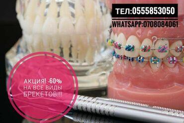 пластинки в Кыргызстан: Стоматолог | Фотопломбы, Брекет системы, пластинки | Консультация, Круглосуточно