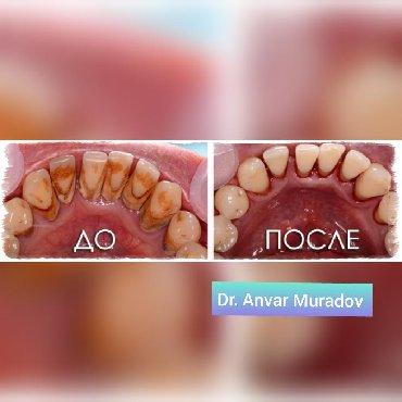 стоматологических услуг в Кыргызстан: Виды стоматологических Услуг#Удаление зубов #Лечение