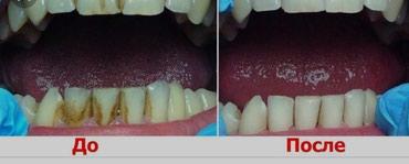 услуги стоматолога в Кыргызстан: Брекеты со скидкой,Брекеты Бишкек,чистка зубов,отбеливание зубов