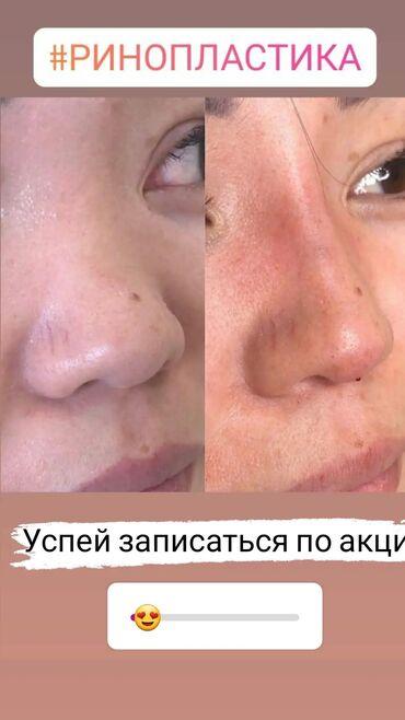 Косметолог | Ботокс, Биоревитализация, Ботулинотерапия | Консультация, Гипоаллергенные материалы, Сертифицированный косметолог
