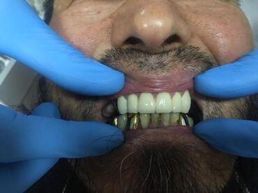 Стоматолог!Стоматология! Бишкек!Все виды стоматологических услуг!