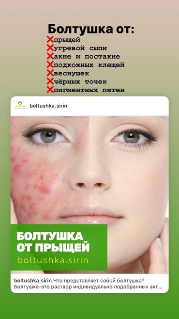 Средство от проблемной кожи, которое способствует устранению:  ✔ пры