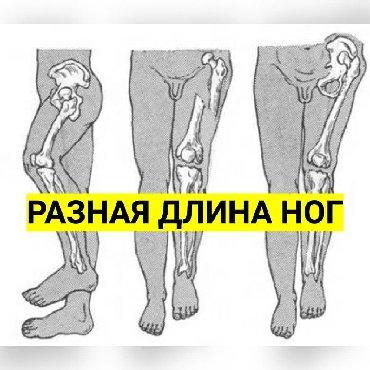 ванночка для ног в Кыргызстан: Разная длина ног?!  СИЛИКОНОВЫЕ ПОДПЯТОЧНИКИ - ВКЛАДЫШИ ДЛЯ УВЕЛИЧЕНИЯ