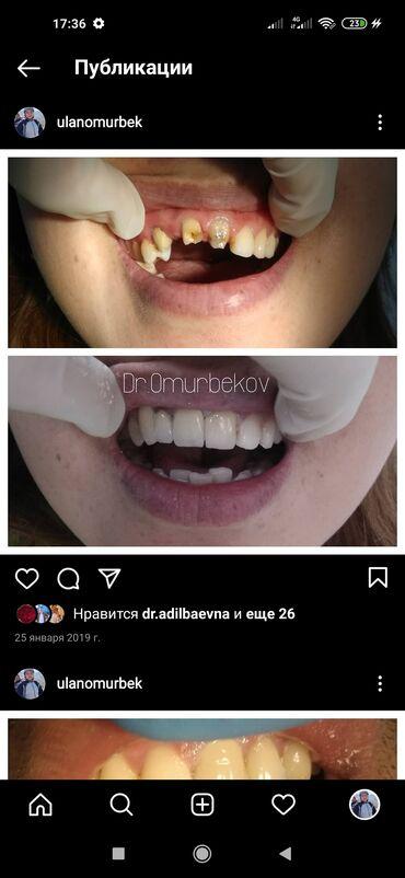 ассистент стоматолога бишкек in Кыргызстан | СТОМАТОЛОГИЯ: Безболезненное лечение кариеса,пульпитов,периодонтитов