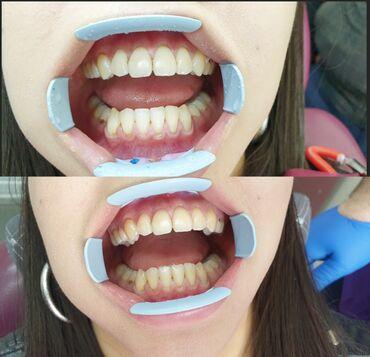 Стоматолог   Чистка зубов, Лечение десен, Отбеливание   Консультация, Круглосуточно