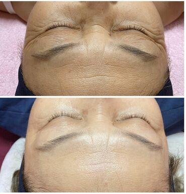 гуси в Кыргызстан: Косметолог | Удаление гусинных лапок, Удаление носогубных складок | Консультация, Гипоаллергенные материалы, Сертифицированный косметолог