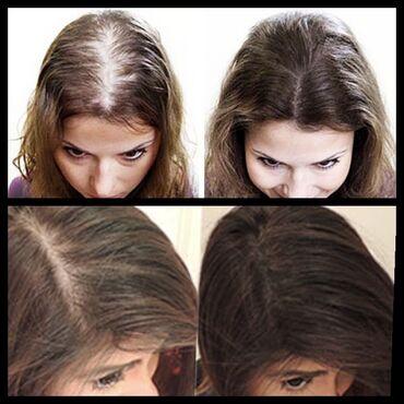 Для всех, кто хочет иметь густые и красивые волосы. При чем эффект буд