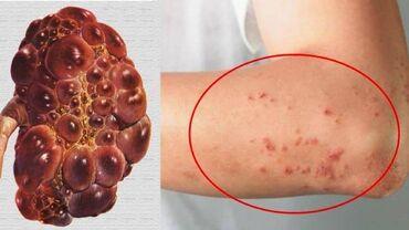 Xidmətlər - Cəlilabad: ---Böyrək xəstəliklərinin simptomları bir çox digər xəstəliklərin