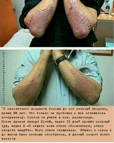 Витамины и БАД - Кок-Ой: Капсулы здоровья и счастья! эти капсулы укрепляют иммунитет человека