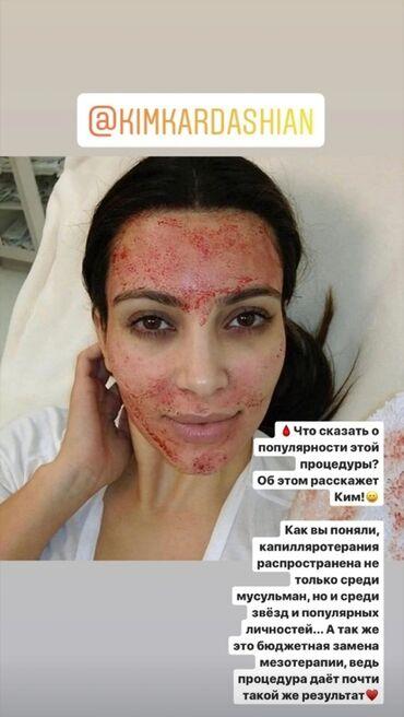 вафельница бишкек in Кыргызстан | ДРУГОЙ ДОМАШНИЙ ДЕКОР: Хиджама: Зачем тебе капилляротерапия? Многие придерживается такого