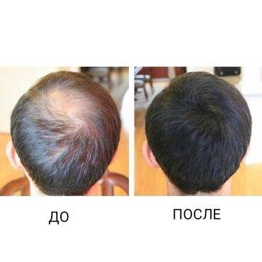Загуститель для волос Топпик – это 100% натуральный продукт