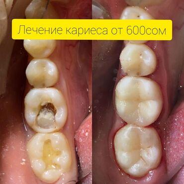 гелевый протез в Кыргызстан: Стоматолог   Брекет системы, пластинки