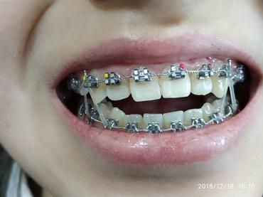 стоматологические услуги в Кыргызстан: Брекеты со скидкой,Брекеты Бишкек,чистка зубов,отбеливание зубов