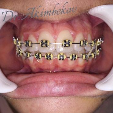 Все виды стоматологических услуг в Бишкек