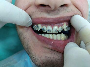 вакансии ассистента стоматолога в Азербайджан: Стоматология | Брекеты | Кредит