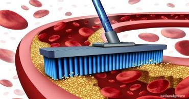 Ateroskleroz xəstəliyi zamanı damarlarda xolesterol yığılır, damarlar