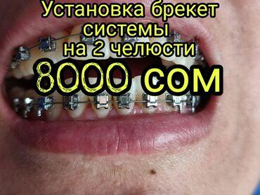 ассистент стоматолога бишкек in Кыргызстан | СТОМАТОЛОГИЯ: Стоматолог | Реставрация, Протезирование, Чистка зубов | Круглосуточно