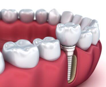 вакансии ассистента стоматолога в Азербайджан: Diş Hekimi Kreditlə ilkin ödəniş 50 %