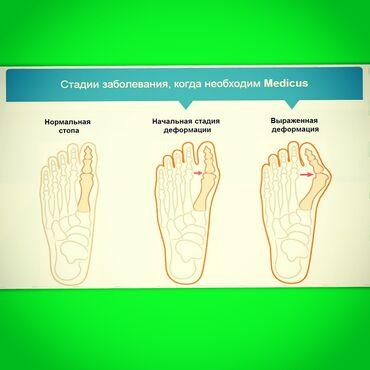 264 объявлений: Корректоры большого пальца ногиОригинальная продукция компании Medicus