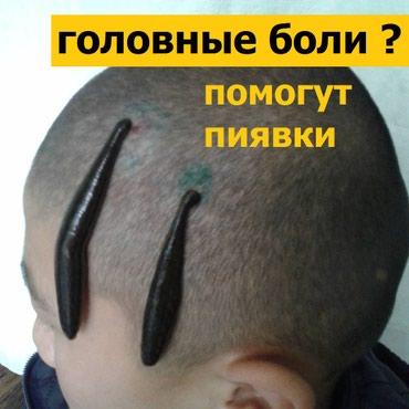 Гирудотерапия в Бишкек