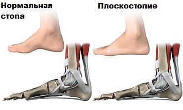 Лечение плоскостопия! в Бишкек
