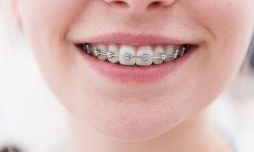 amway витамины цена в Кыргызстан: Стоматолог | Реставрация, Протезирование, Чистка зубов | Консультация