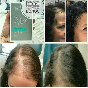 От выпадения волос сыворотка. упаковка рассчитана на курс. в Бишкек