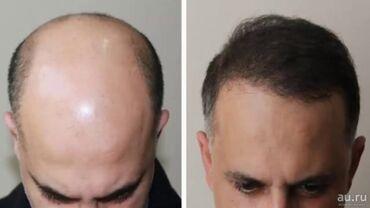 Minoxidil для роста бороды и волос на голове. Миноксидил применяется